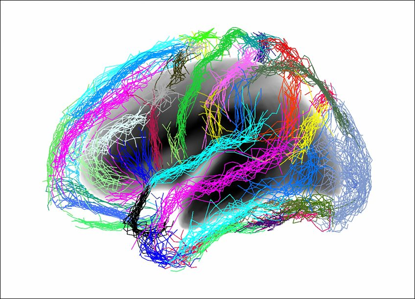 L'Inserm dévoile une nouvelle piste d'analyse pour préciser le stade de la maladie d'Alzheimer