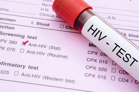VIH : la séropositivité diminue de façon significative entre 2017 et 2018